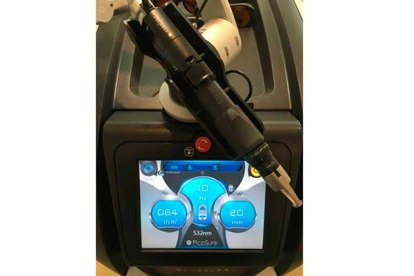 Medical village unveils new tattoo removal technology for New tattoo removal technology